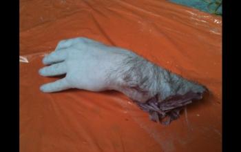 fake-human-arm